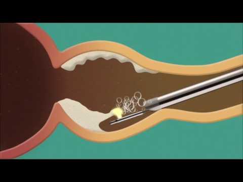 Effetti correre sulla prostata