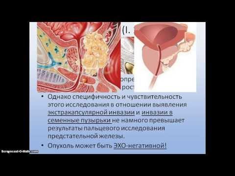 Результаты биопсии предстательной