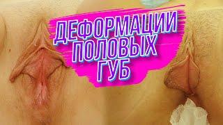 Асимметрия половых губ