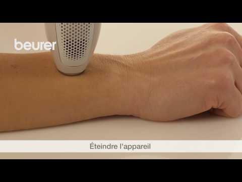 Loblitération laser des veines à sankt-peterbourge