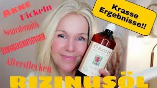 Falten weg ANTI-AGING | RIZINUSÖL, Geheimtipp für Haut, Haare und Wimpern