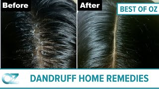 Quick and Easy Home Remedies For Dandruff - Best of Oz Collection