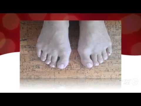 Выпрямитель косточки на большом пальце ноги