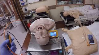 Copilot Video Laryngoscope with Bougie option. Coffine supine patient positioning.