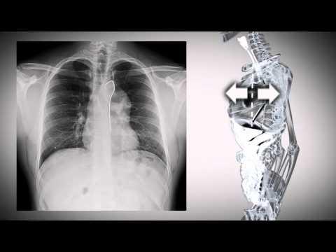Zarys sylwetkowy klatki piersiowej na radiogramach+ cases