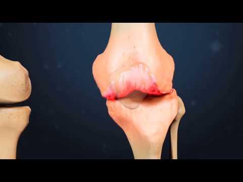 Congelați durerea articulară