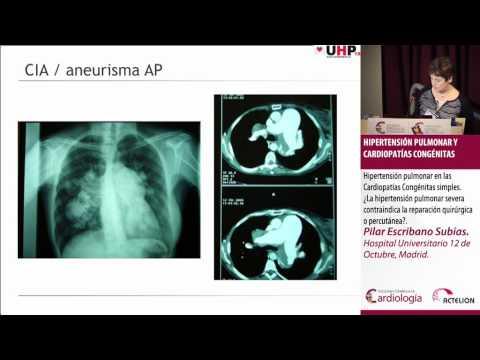 Artículos científicos sobre la enfermedad hipertensiva