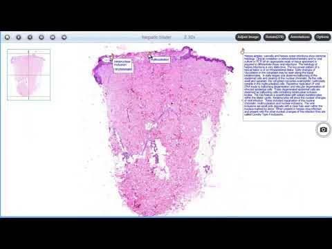 Giardia parazit tratament
