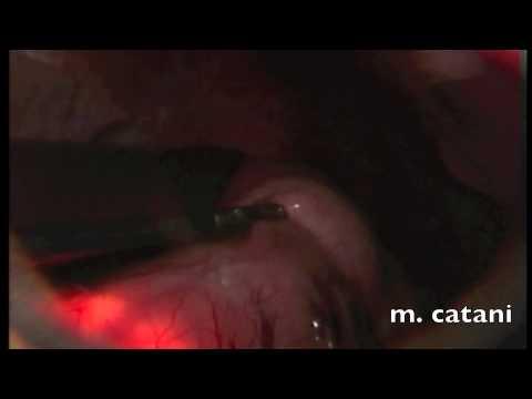 Estratto di spina dorsale in reparto di petto