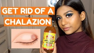 how to get rid of a chalazion nhs