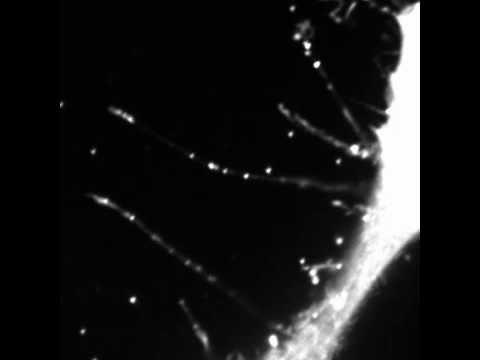 A parazita rendszer