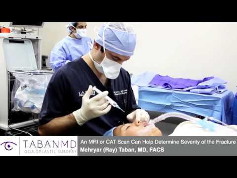 Orbital Blowout Fracture Surgery