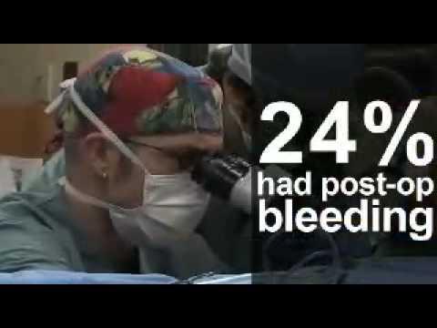 โรคสะเก็ดเงินฮังการี