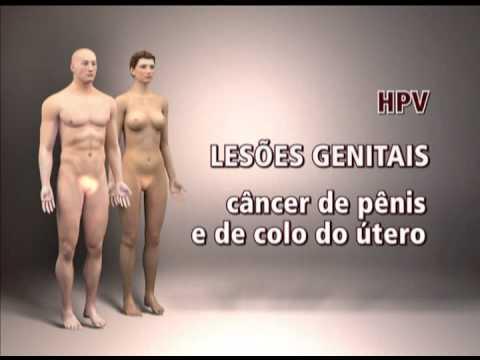 Giardiază înseamnă