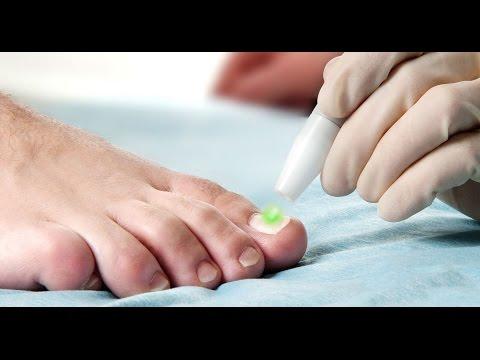 Kung paano mabuhay na may fungus toenails