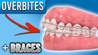 How Do BRACES FIX Overbites?   Overbite Before and After Braces   Premier Orthodontics