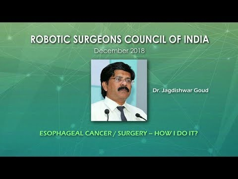 Esophageal Cancer Surgery- How I do it