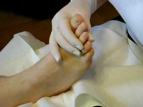 Wie den schwarzen Nagel auf der Hand zu heilen