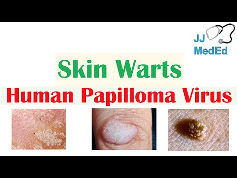 Wart on foot treatment when pregnant