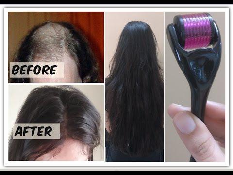 Das Mittel der sehr schnelle Haarwuchs