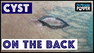 A very difficult cyst to excise on the Back