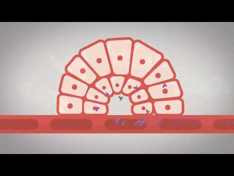 Comment choisir le bon traitement pour les patients atteints de diabète