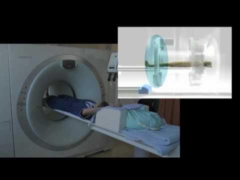 Trattamento di cefalosporine prostatite