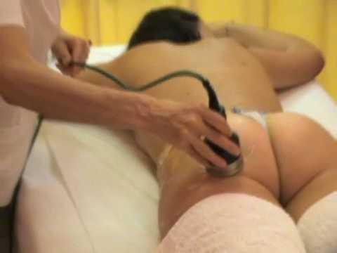 Farmaci per trattamento di gambe di un varicosity