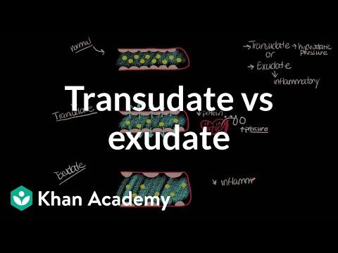 Transudate vs exudate (video) | Khan Academy