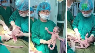 Ca sinh 3 bé trai cùng trứng hiếm gặp | VTC14