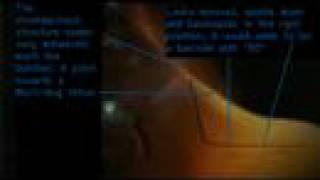 Deus Ex 3 Trailer - Fetus Analysis