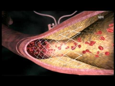 Diabetische Gangrän Anfangsstadium