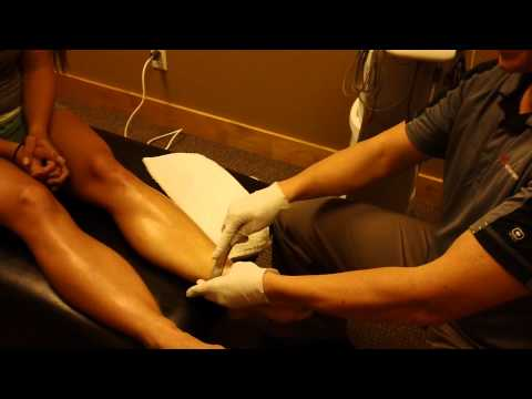 Video Shin Splint Treatment - Sports Medicine Specialist in Bozeman, MT