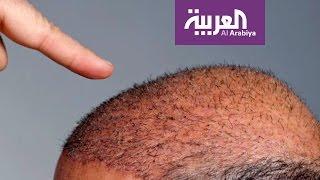 تحميل و استماع صباح العربية: تقنية جديدة لزراعة الشعر دون جراحة MP3