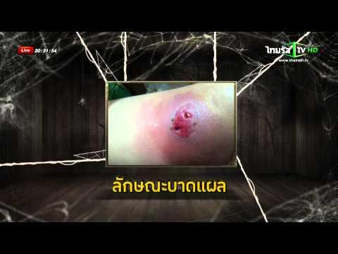 อาการปวดหลังผ่าตัด varices หยุด