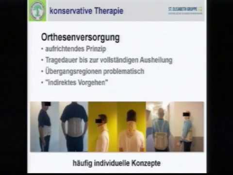Operation an der Schulter Endoprothetik auf Bewertungen