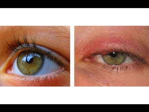Video HOW TO CURE AN EYE INFECTION IN 24 HOURS!
