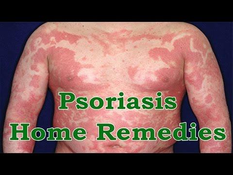 Le médicament contre le psoriasis de la photo