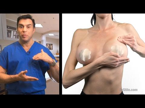 Les exercices selon laugmentation du volume de la poitrine
