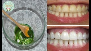 How To Whitening Your Teeth Naturally म फ त ऑनल इन