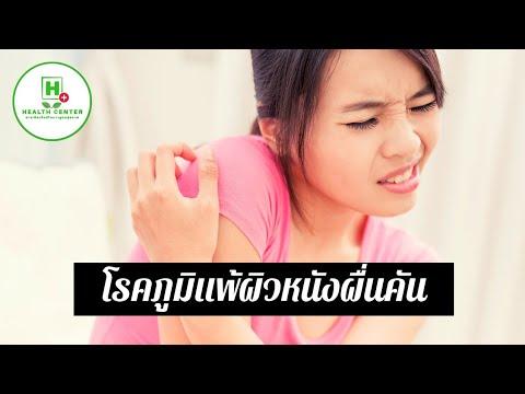 โรคสะเก็ดเงิน palmoplantar เฟส