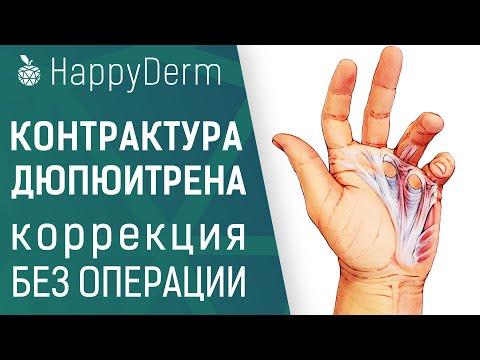 Лечение контрактуры Дюпюитрена, коррекция ладонного апоневроза малоинвазивным методом