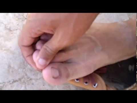 กระดูกเท้าบนนิ้วเท้าใหญ่