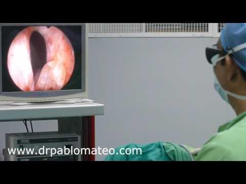 Prostatite tratada por massagem