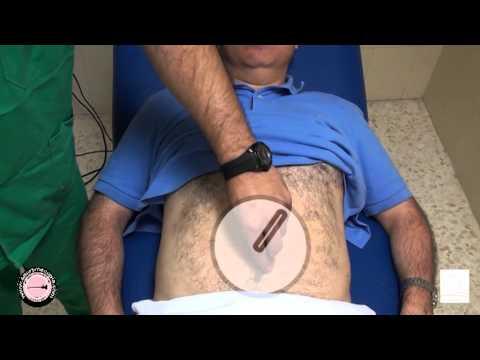 Diagnóstico diferencial de com diabética