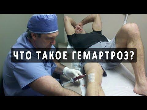 Что такое гемартроз и как он лечится?
