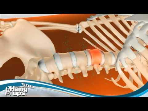 Il farmaco più efficace per lartrosi del ginocchio