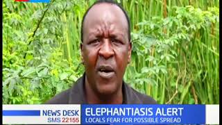 Fears over elephantiasis outbreak in Taita