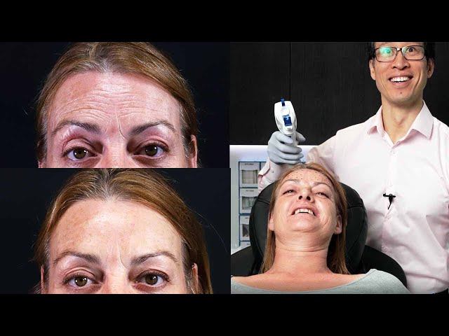 Forehead Wrinkle Treatments And Dermal Fillers