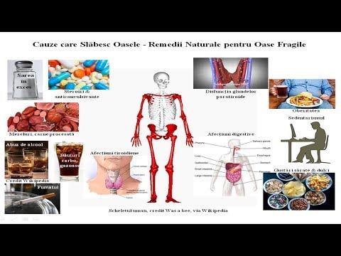 Regim de tratament pentru artroza de gradul I